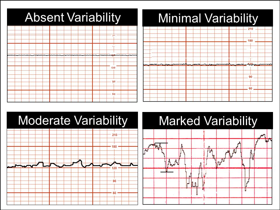 Absent Variability Minimal Variability Marked Variability Moderate Variability