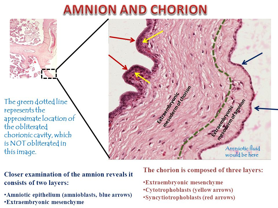 Amniotic fluid would be here The chorion is composed of three layers: Extraembryonic mesenchyme Cytotrophoblasts (yellow arrows) Syncytiotrophoblasts