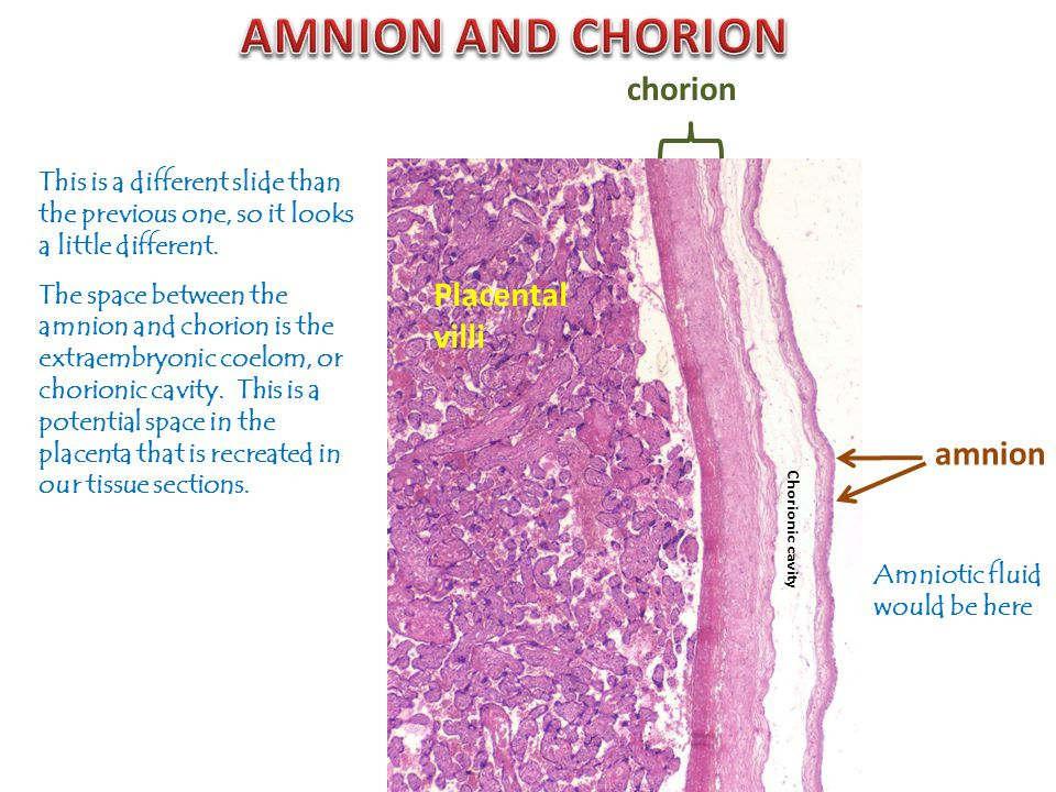 amnion chorion Amniotic fluid would be here This is a different slide than the previous one, so it looks a little different. The space between the amn