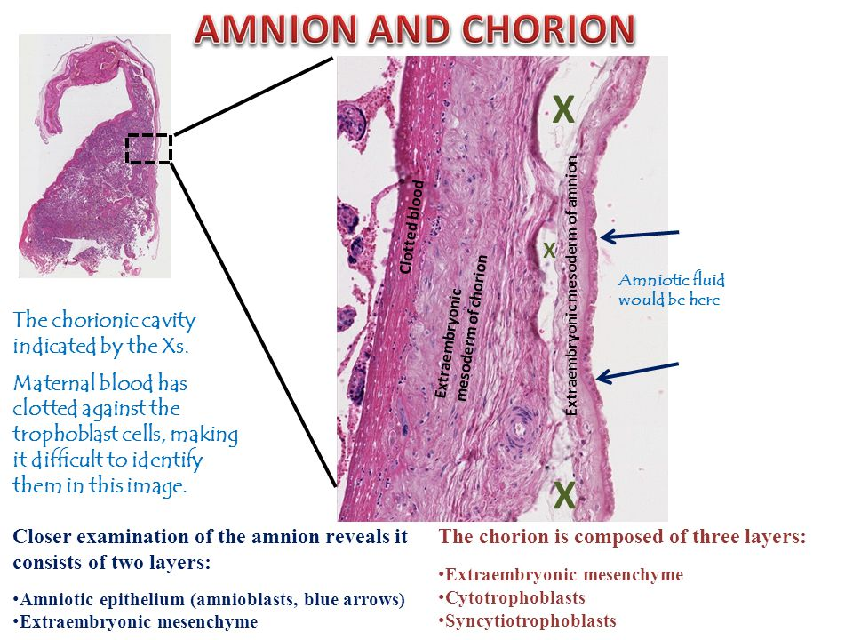 Amniotic fluid would be here The chorion is composed of three layers: Extraembryonic mesenchyme Cytotrophoblasts Syncytiotrophoblasts Closer examination of the amnion reveals it consists of two layers: Amniotic epithelium (amnioblasts, blue arrows) Extraembryonic mesenchyme Extraembryonic mesoderm of amnion Extraembryonic mesoderm of chorion Clotted blood The chorionic cavity indicated by the Xs.