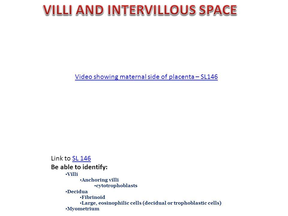 Video showing maternal side of placenta – SL146 Link to SL 146SL 146 Be able to identify: Villi Anchoring villi cytotrophoblasts Decidua Fibrinoid Lar