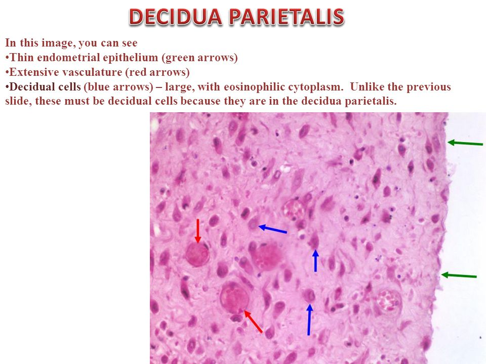 In this image, you can see Thin endometrial epithelium (green arrows) Extensive vasculature (red arrows) Decidual cells (blue arrows) – large, with eosinophilic cytoplasm.