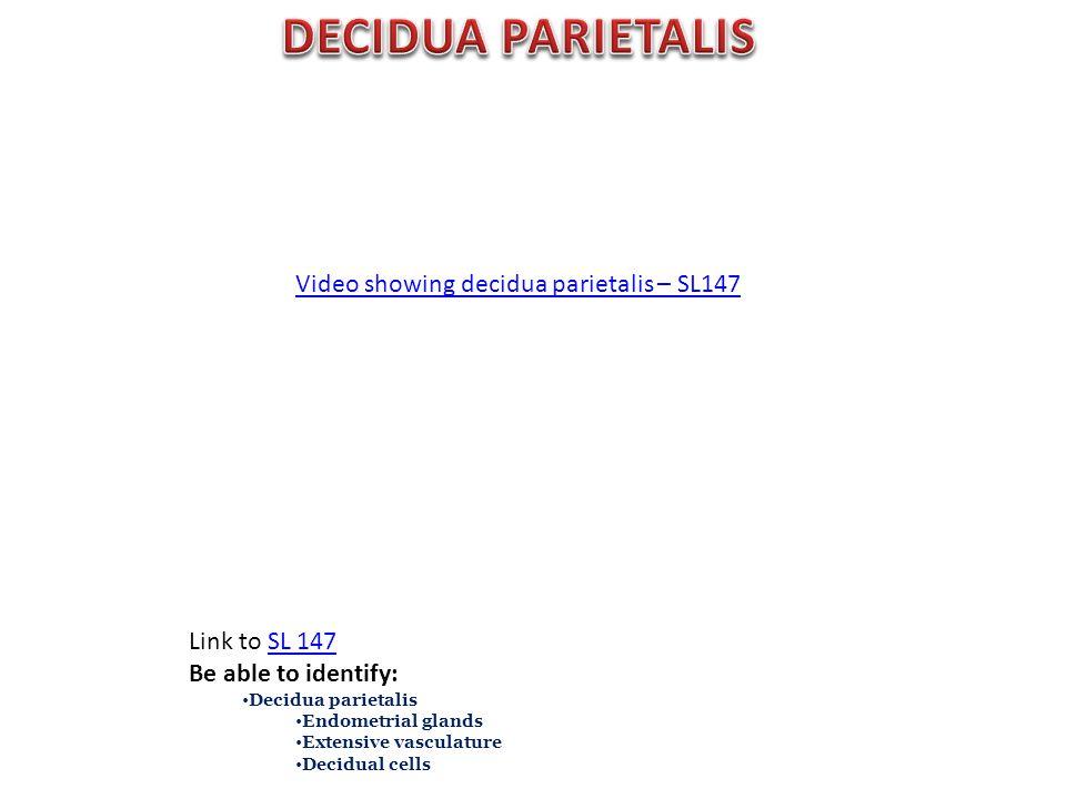 Video showing decidua parietalis – SL147 Link to SL 147SL 147 Be able to identify: Decidua parietalis Endometrial glands Extensive vasculature Decidual cells