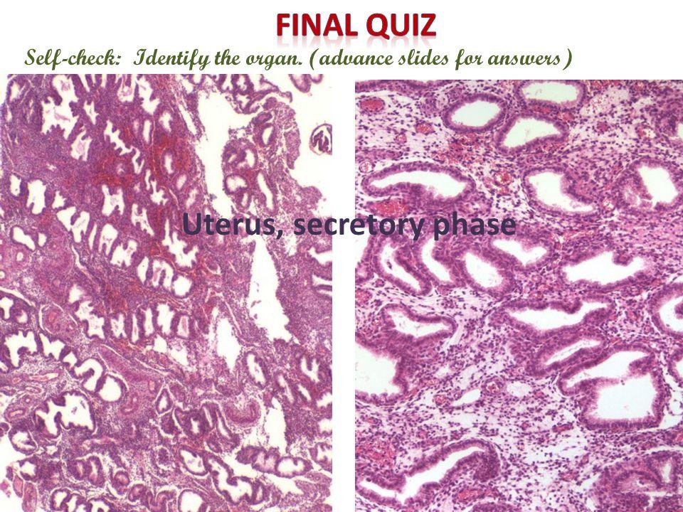 Self-check: Identify the organ. (advance slides for answers) Uterus, secretory phase