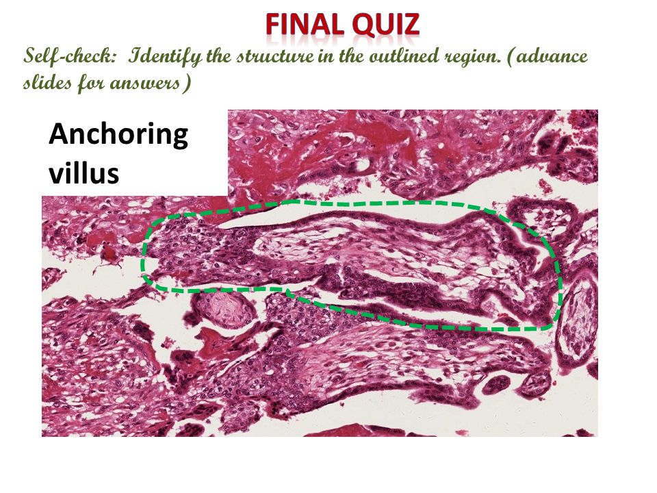Self-check: Identify the structure in the outlined region. (advance slides for answers) Anchoring villus