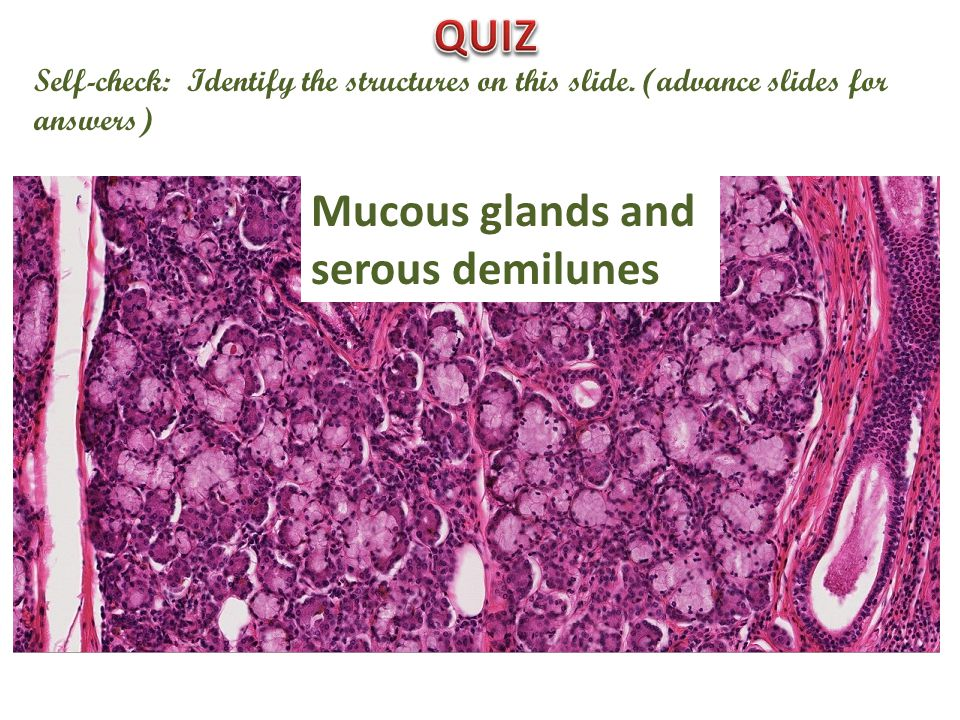 Self-check: Identify the structures on this slide. (advance slides for answers) Mucous glands and serous demilunes