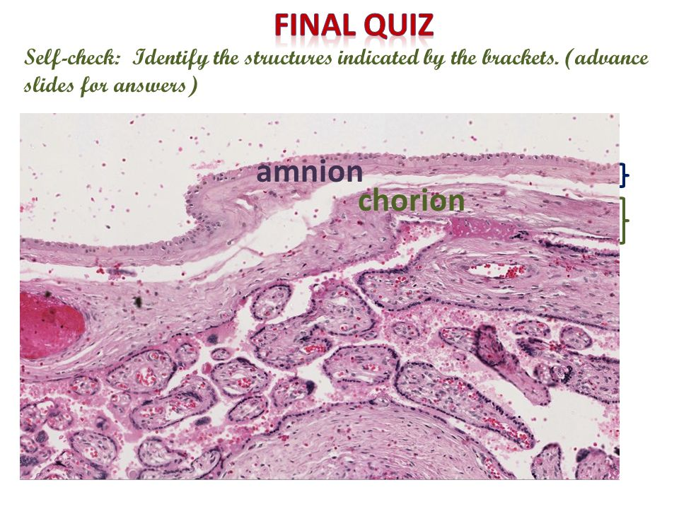 Self-check: Identify the structures indicated by the brackets. (advance slides for answers) amnion chorion