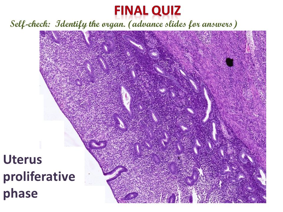 Self-check: Identify the organ. (advance slides for answers) Uterus proliferative phase