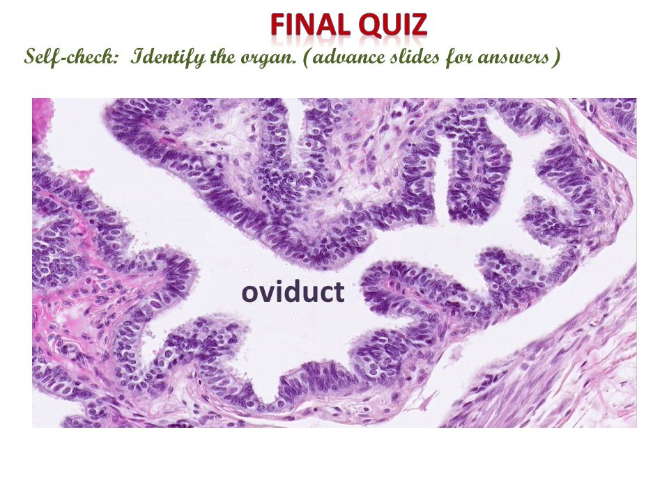 Self-check: Identify the organ. (advance slides for answers) oviduct