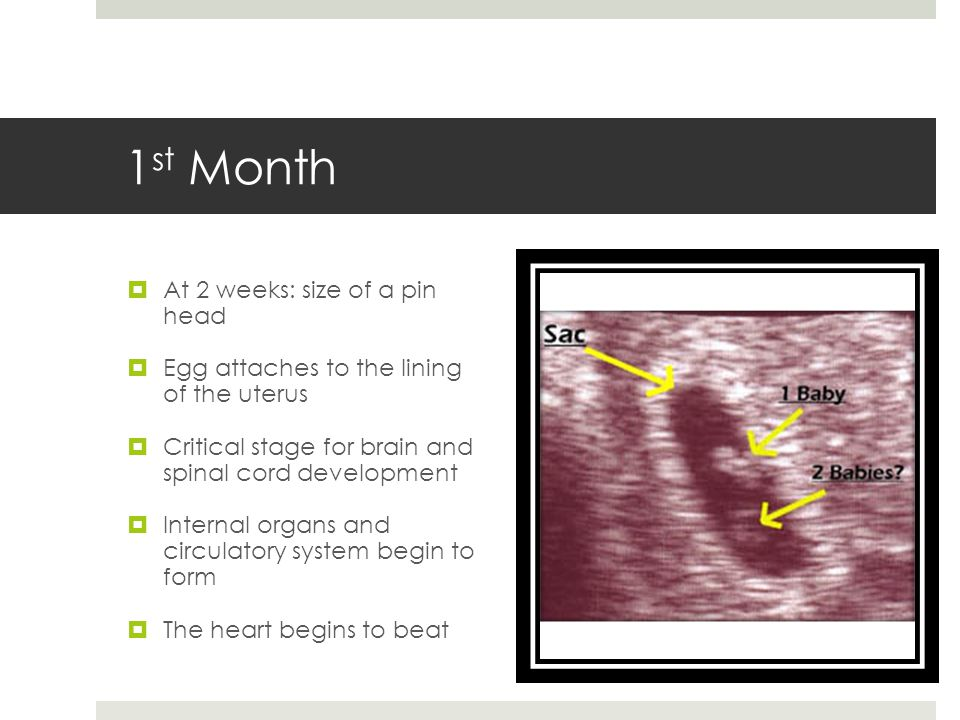 1 st Month  At 2 weeks: size of a pin head  Egg attaches to the lining of the uterus  Critical stage for brain and spinal cord development  Intern