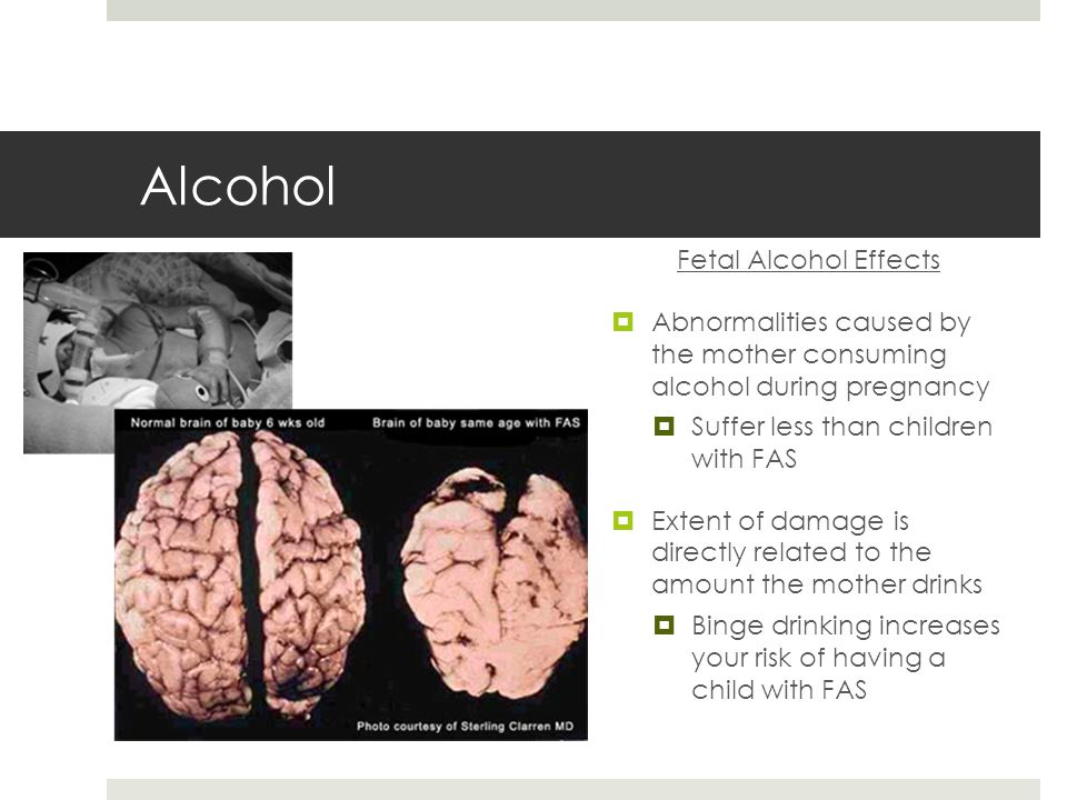Alcohol Fetal Alcohol Effects  Abnormalities caused by the mother consuming alcohol during pregnancy  Suffer less than children with FAS  Extent of