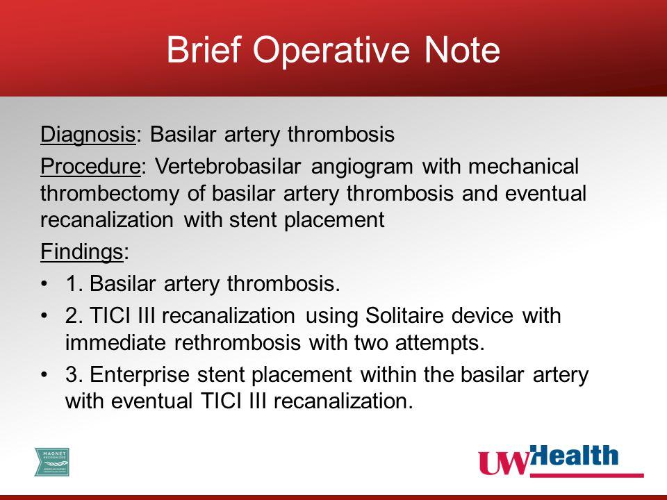 Diagnosis: Basilar artery thrombosis Procedure: Vertebrobasilar angiogram with mechanical thrombectomy of basilar artery thrombosis and eventual recan