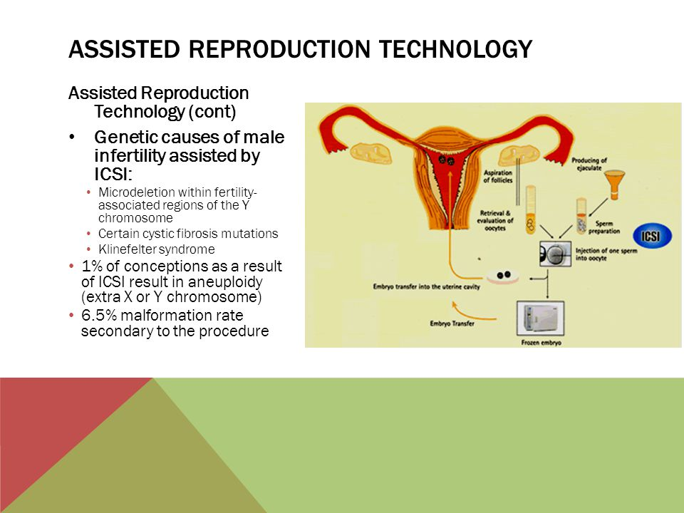 Assisted Reproduction Technology (cont) Genetic causes of male infertility assisted by ICSI: Microdeletion within fertility- associated regions of the