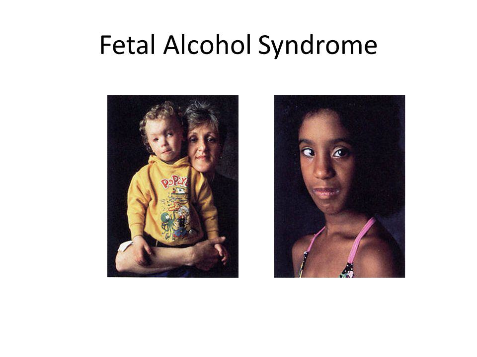 Alcohol Fetal alcohol syndrome (FAS) – Large amounts of alcohol, whole pregnancy – Mental retardation – Slow physical growth – Facial abnormalities Al