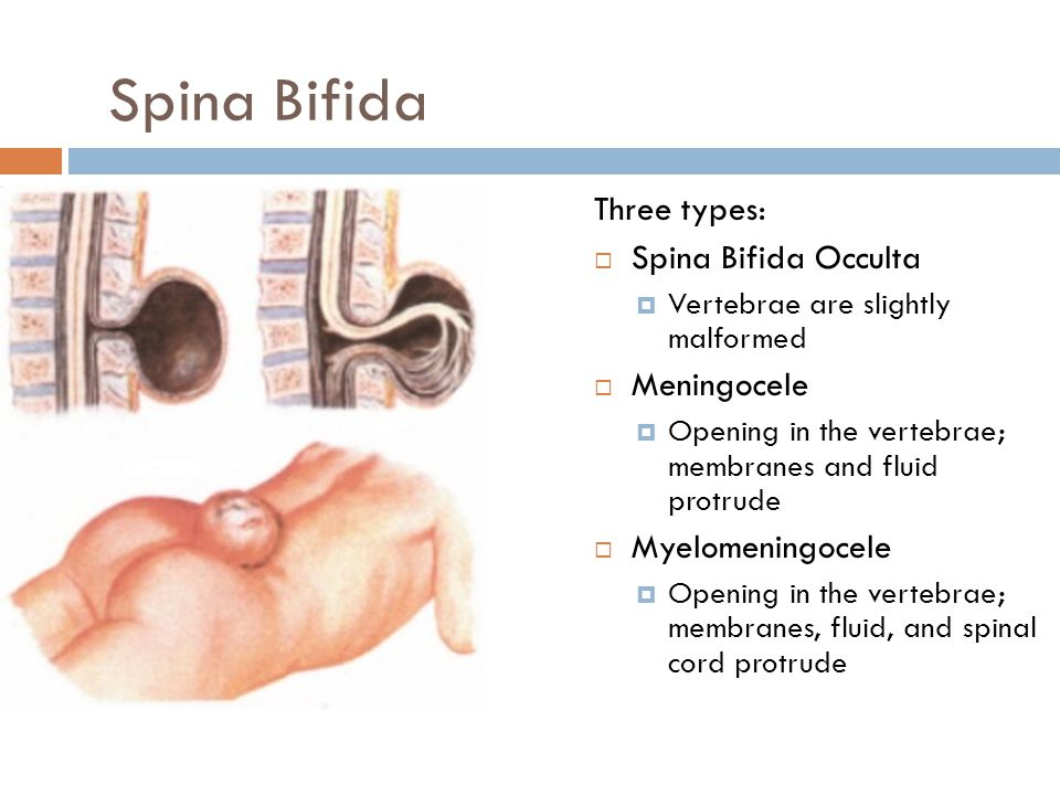 Three types:  Spina Bifida Occulta  Vertebrae are slightly malformed  Meningocele  Opening in the vertebrae; membranes and fluid protrude  Myelom