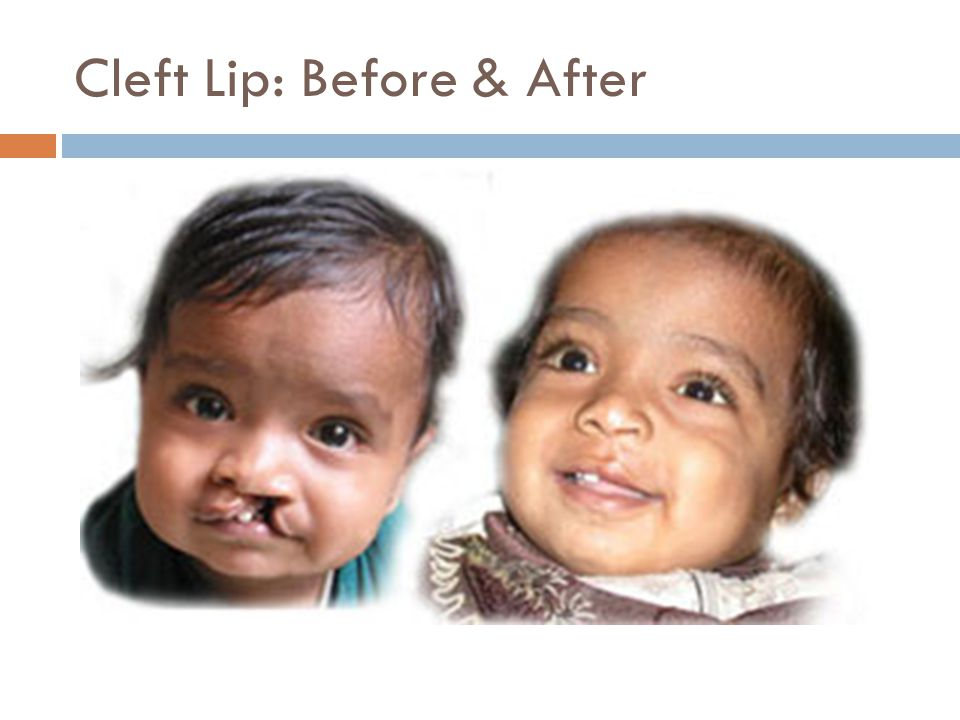 Cleft Lip: Before & After