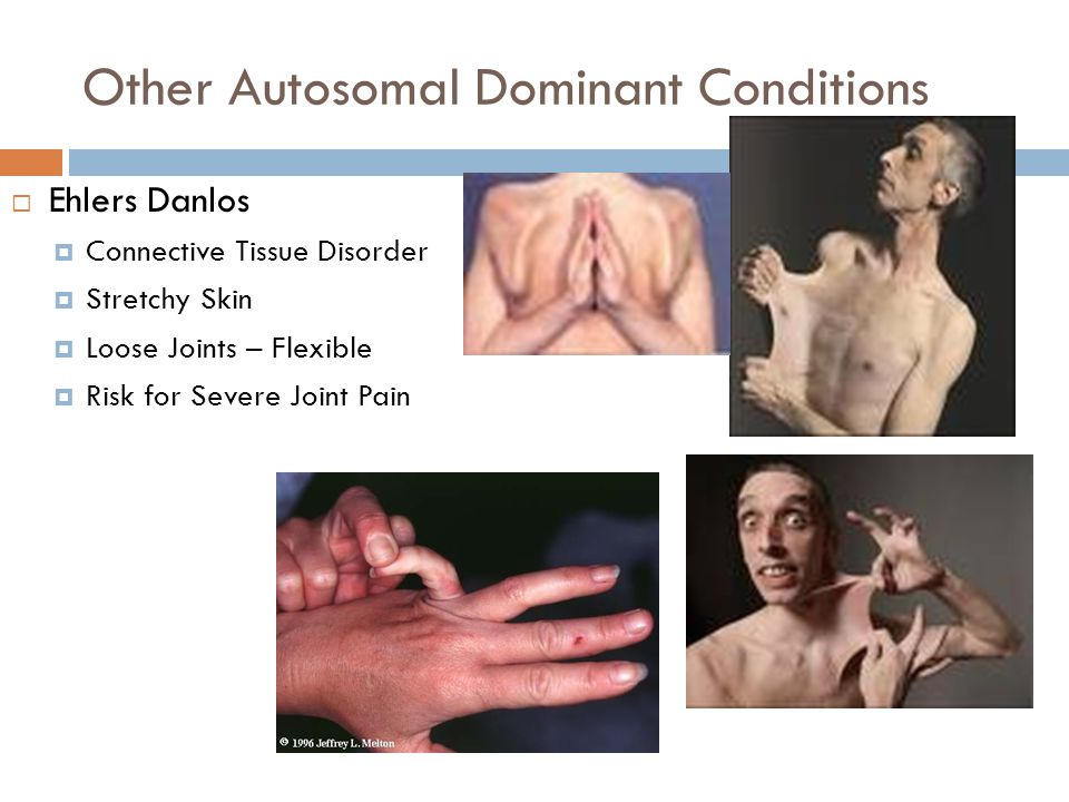 Other Autosomal Dominant Conditions  Ehlers Danlos  Connective Tissue Disorder  Stretchy Skin  Loose Joints – Flexible  Risk for Severe Joint Pai
