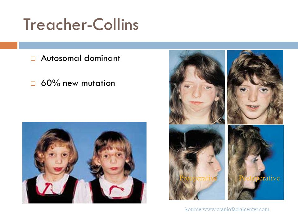 Treacher-Collins  Autosomal dominant  60% new mutation PostoperativePreoperative Source:www.craniofacialcenter.com