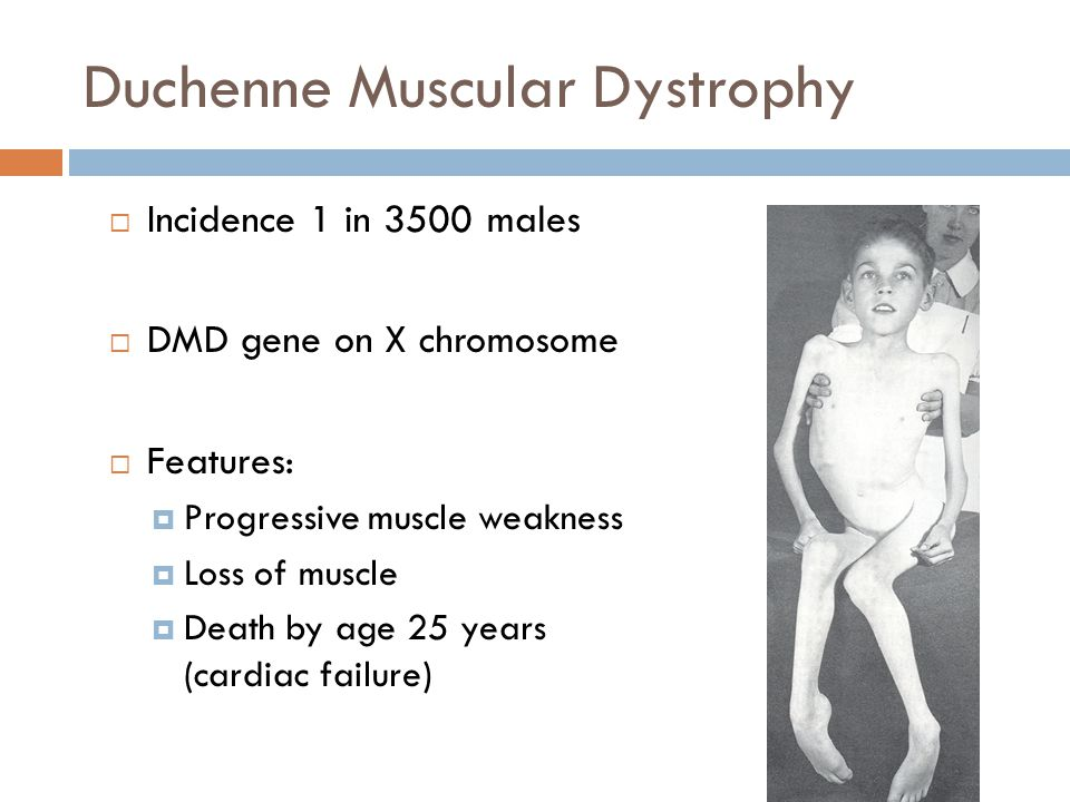 Duchenne Muscular Dystrophy  Incidence 1 in 3500 males  DMD gene on X chromosome  Features:  Progressive muscle weakness  Loss of muscle  Death
