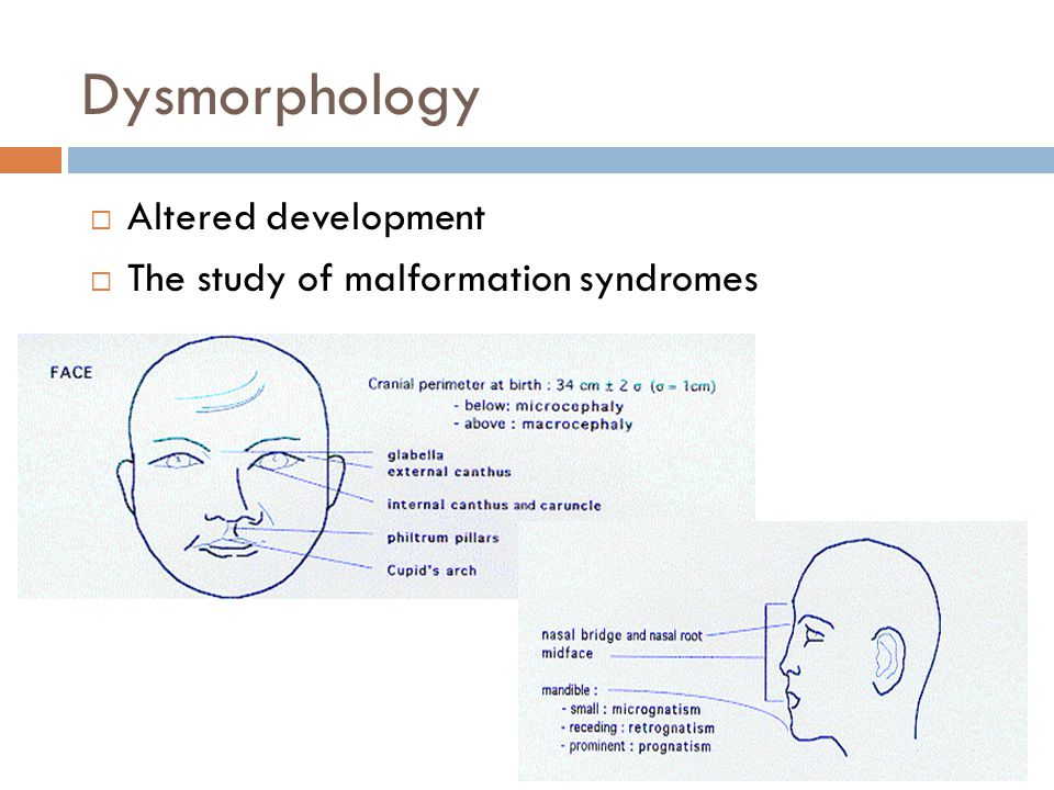 Dysmorphology  Altered development  The study of malformation syndromes