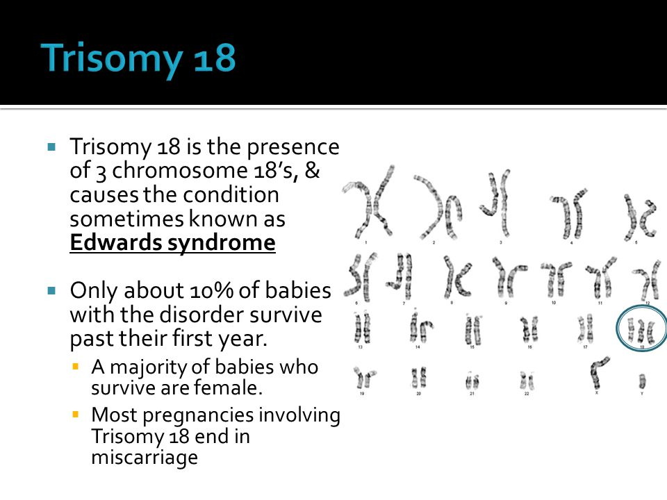 Trisomy 18 is the presence of 3 chromosome 18's, & causes the condition sometimes known as Edwards syndrome  Only about 10% of babies with the diso