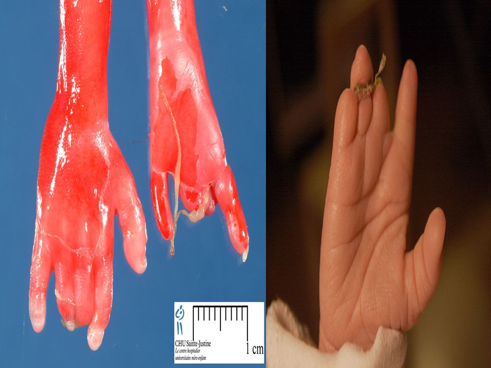 3-Deformations: due to mechanical forces that affect a part of the fetus over a long period.