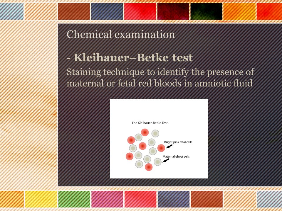 Chemical examination - Kleihauer–Betke test Staining technique to identify the presence of maternal or fetal red bloods in amniotic fluid