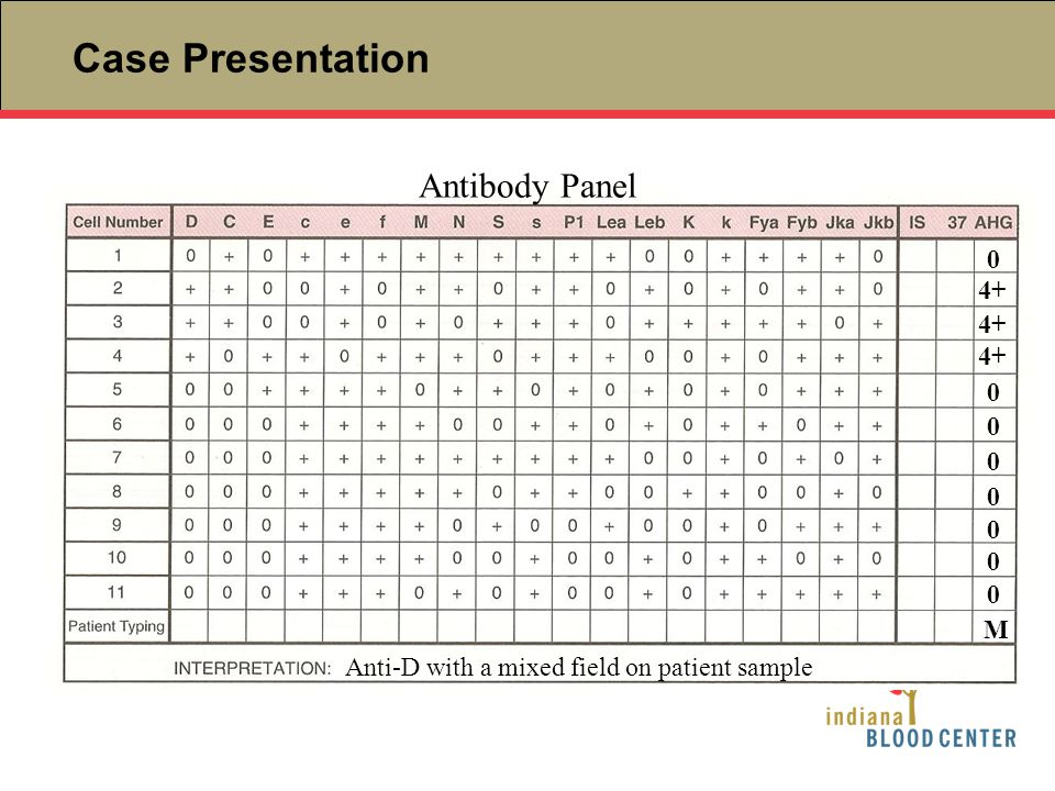 Case Presentation Antibody Panel 4+ 0 0 0 0 0 0 0 0 M Anti-D with a mixed field on patient sample