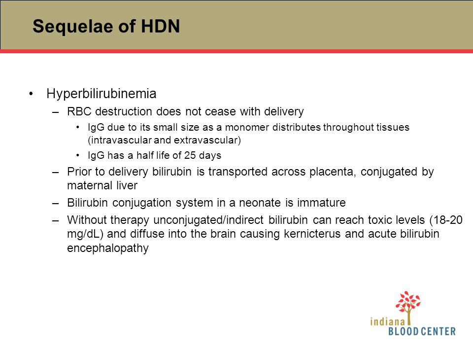 Sequelae of HDN Hyperbilirubinemia –RBC destruction does not cease with delivery IgG due to its small size as a monomer distributes throughout tissues