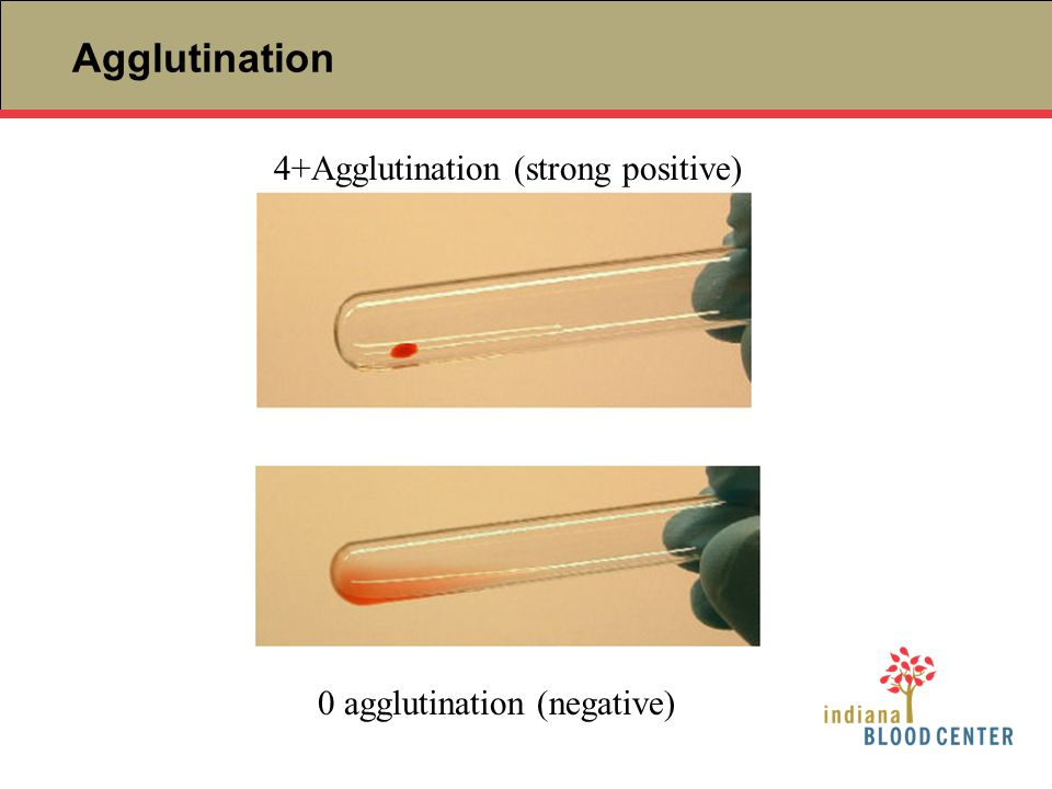 Agglutination 0 agglutination (negative) 4+Agglutination (strong positive)