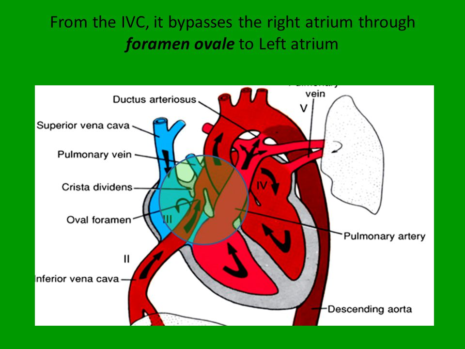 From the IVC, it bypasses the right atrium through foramen ovale to Left atrium