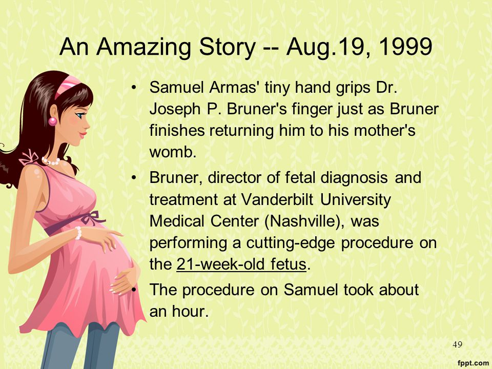 49 An Amazing Story -- Aug.19, 1999 Samuel Armas' tiny hand grips Dr. Joseph P. Bruner's finger just as Bruner finishes returning him to his mother's