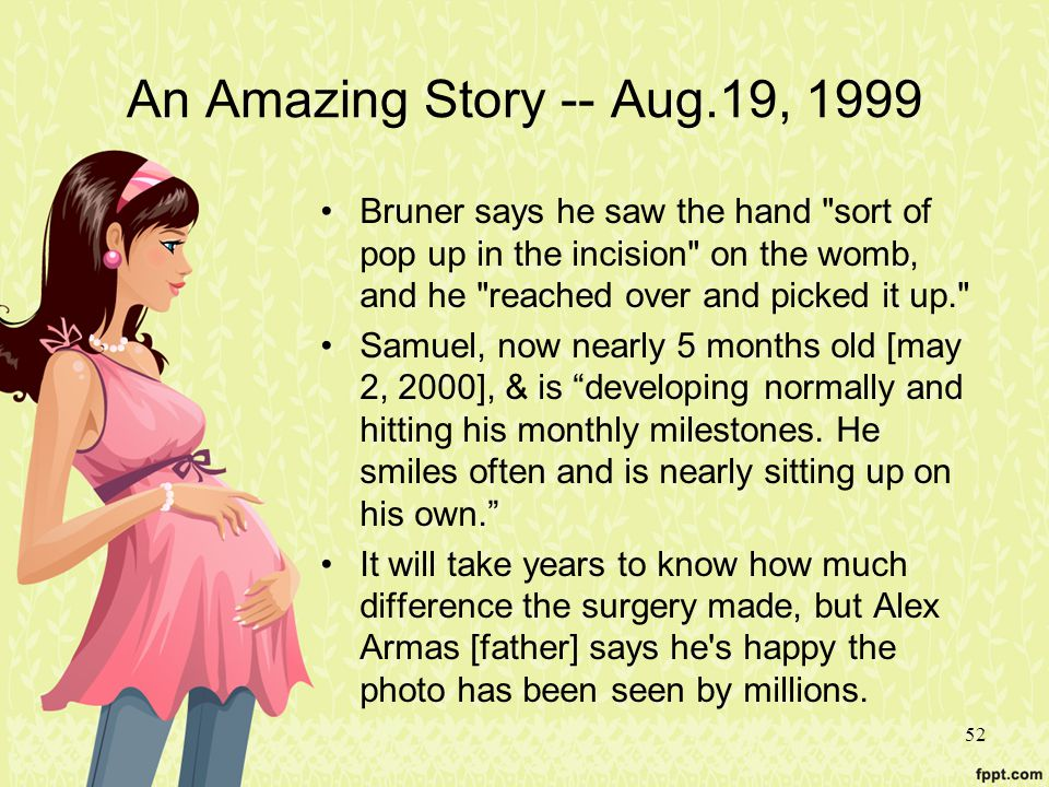 52 An Amazing Story -- Aug.19, 1999 Bruner says he saw the hand