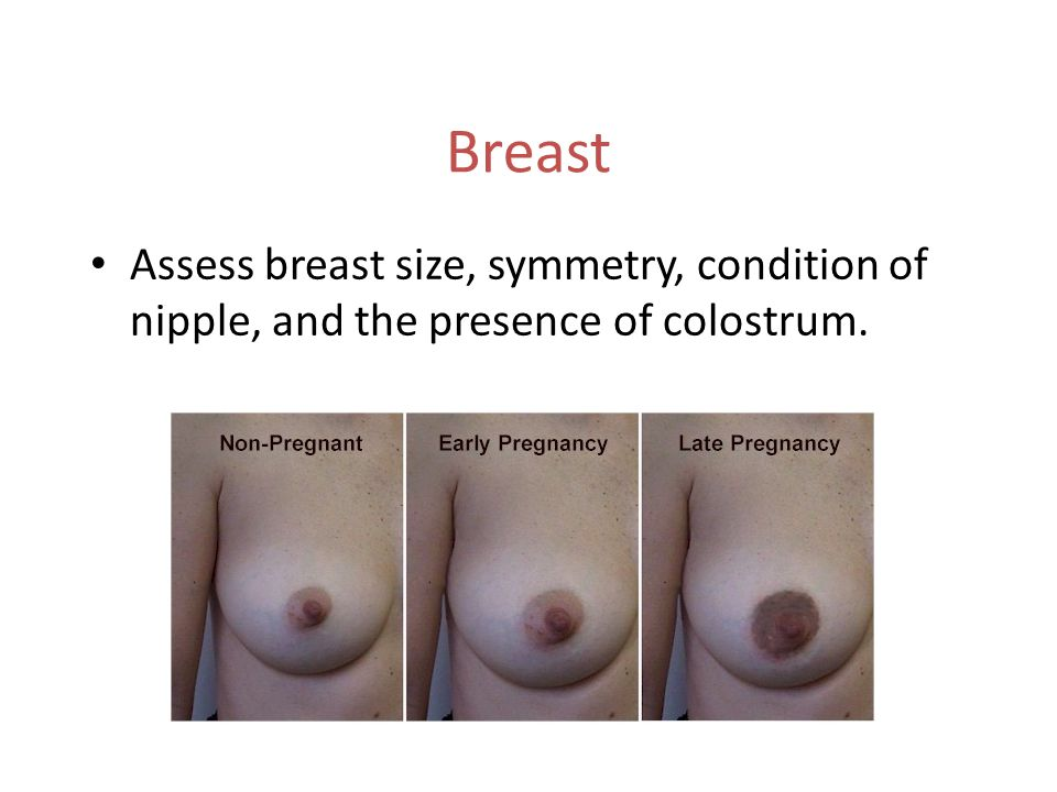 Breast Assess breast size, symmetry, condition of nipple, and the presence of colostrum.