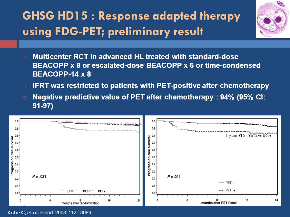 GHSG HD15 : Response adapted therapy using FDG-PET; preliminary result 1-year PFS : 96% vs 86%  Multicenter RCT in advanced HL treated with standard-dose BEACOPP x 8 or escalated-dose BEACOPP x 6 or time-condensed BEACOPP-14 x 8  IFRT was restricted to patients with PET-positive after chemotherapy  Negative predictive value of PET after chemotherapy : 94% (95% CI: 91-97) Kobe C, et al.