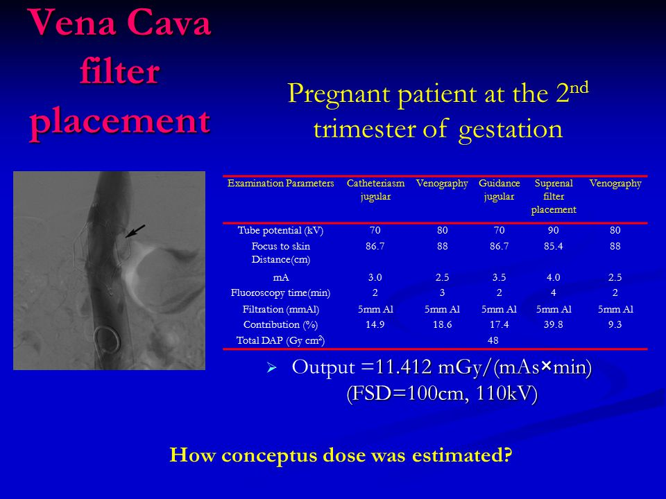 Vena Cava filter placement Pregnant patient at the 2 nd trimester of gestation Examination ParametersCatheteriasm jugular VenographyGuidance jugular Suprenal filter placement Venography Tube potential (kV)708070709080 Focus to skin Distance(cm) 86.78886.785.488 mA3.02.53.54.02.5 Fluoroscopy time(min)23242 Filtration (mmAl)5mm Al Contribution (%)14.918.617.439.89.3 Total DAP (Gy cm 2 )48 How conceptus dose was estimated.