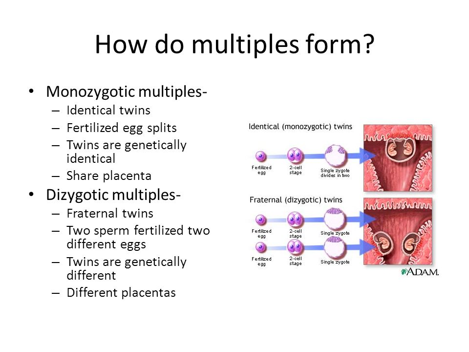 Image Gallery how twins are formed