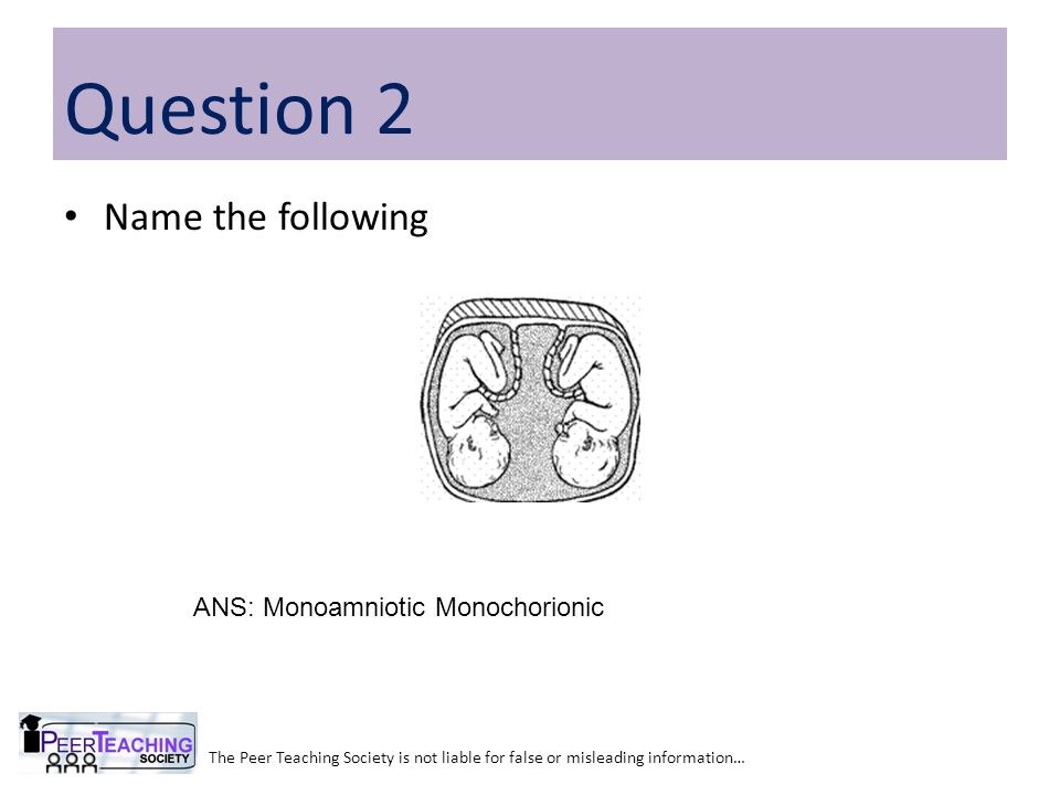 Name the following The Peer Teaching Society is not liable for false or misleading information… Question 2 ANS: Monoamniotic Monochorionic