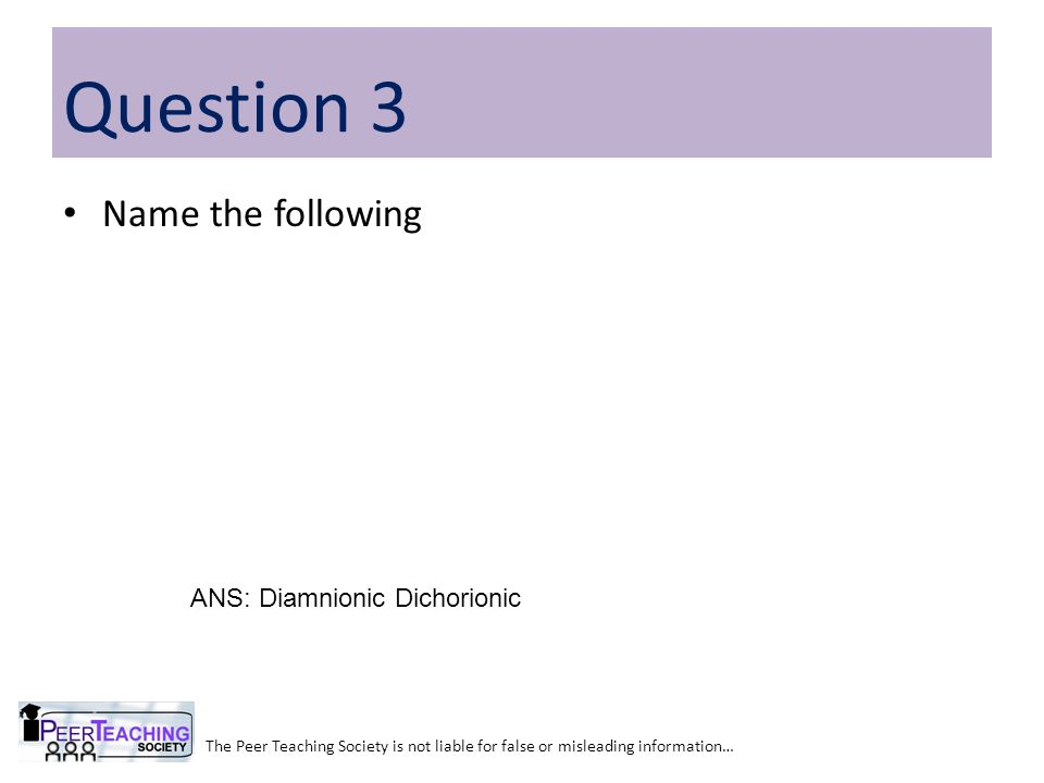 Name the following The Peer Teaching Society is not liable for false or misleading information… Question 3 ANS: Diamnionic Dichorionic
