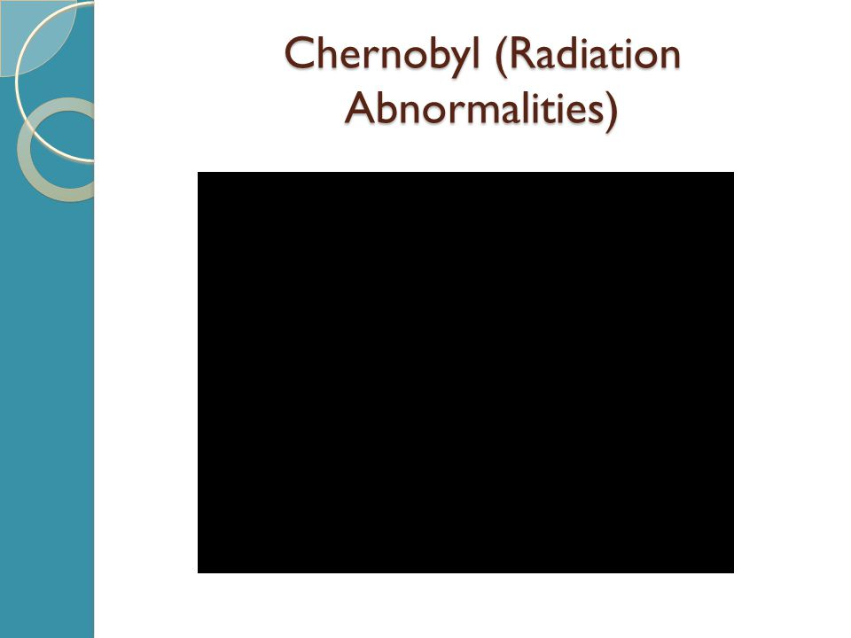 Chernobyl (Radiation Abnormalities)