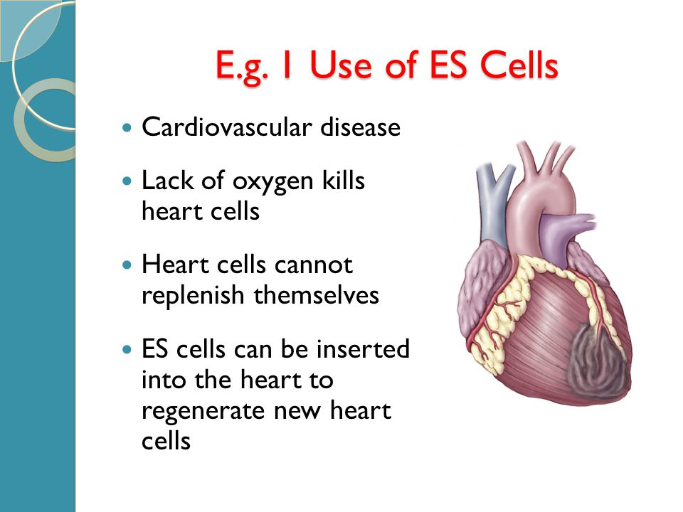 E.g. 1 Use of ES Cells Cardiovascular disease Lack of oxygen kills heart cells Heart cells cannot replenish themselves ES cells can be inserted into t