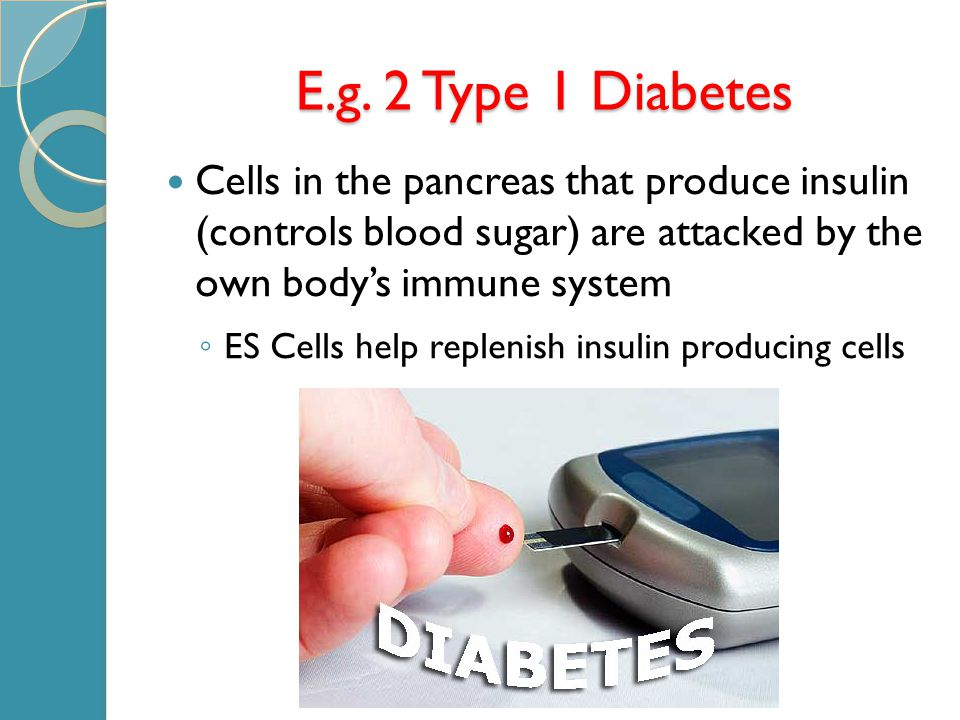 E.g. 2 Type 1 Diabetes Cells in the pancreas that produce insulin (controls blood sugar) are attacked by the own body's immune system ◦ ES Cells help