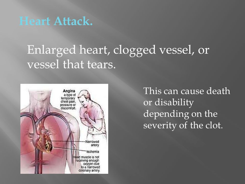 Heart Attack. Enlarged heart, clogged vessel, or vessel that tears. This can cause death or disability depending on the severity of the clot.