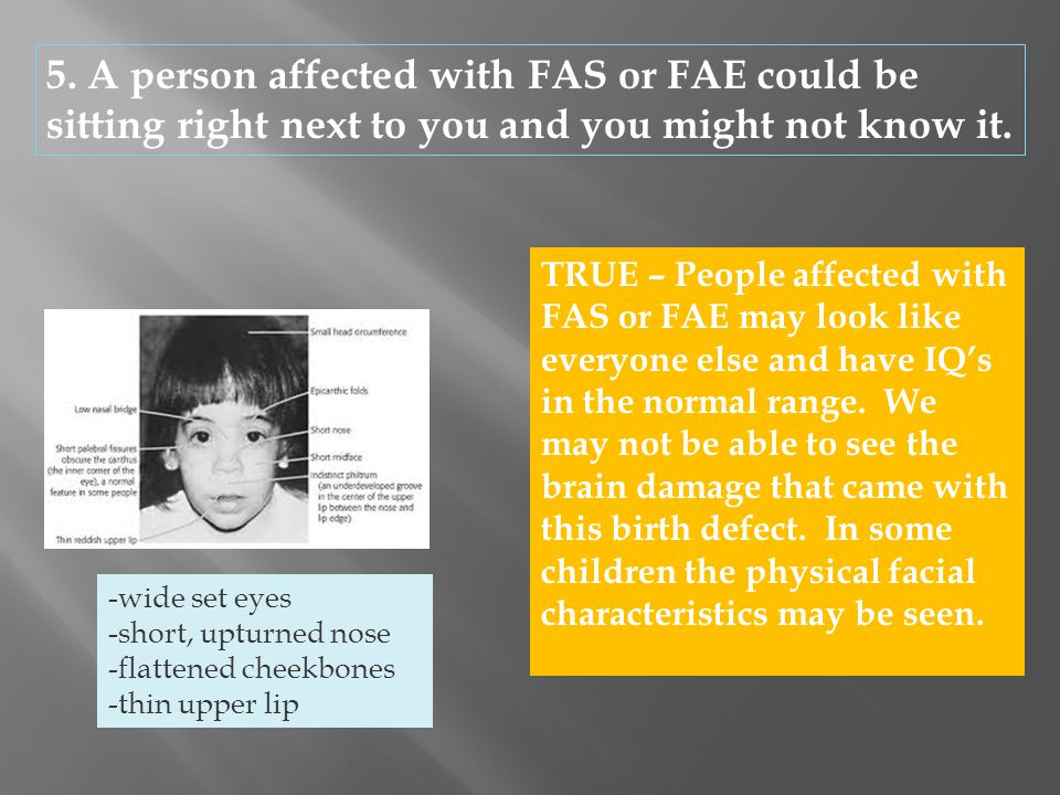 5. A person affected with FAS or FAE could be sitting right next to you and you might not know it.