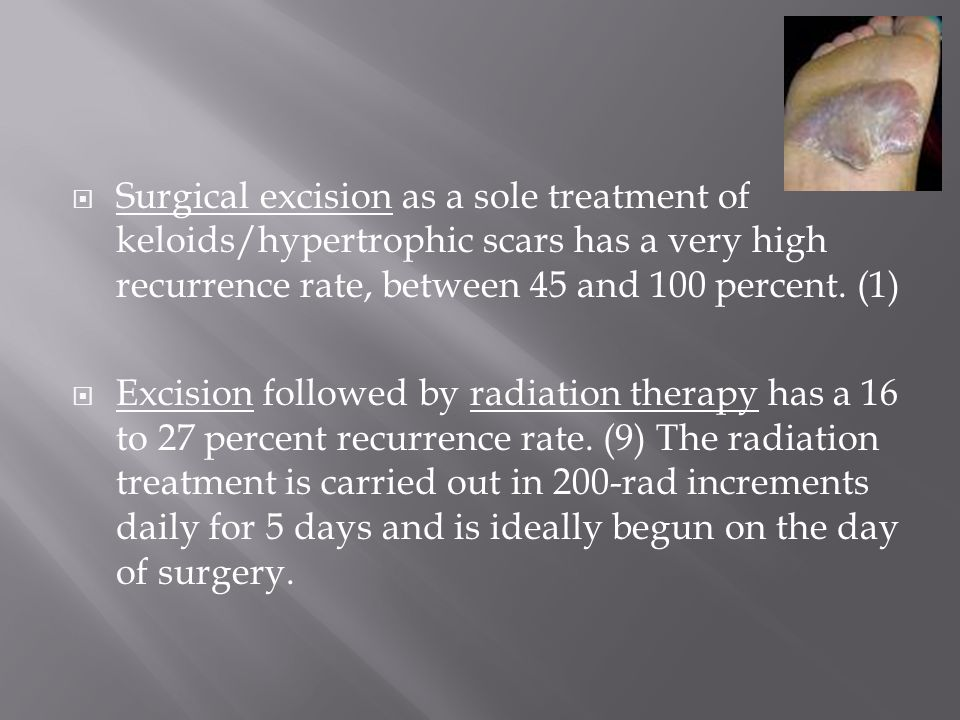  Surgical excision as a sole treatment of keloids/hypertrophic scars has a very high recurrence rate, between 45 and 100 percent.