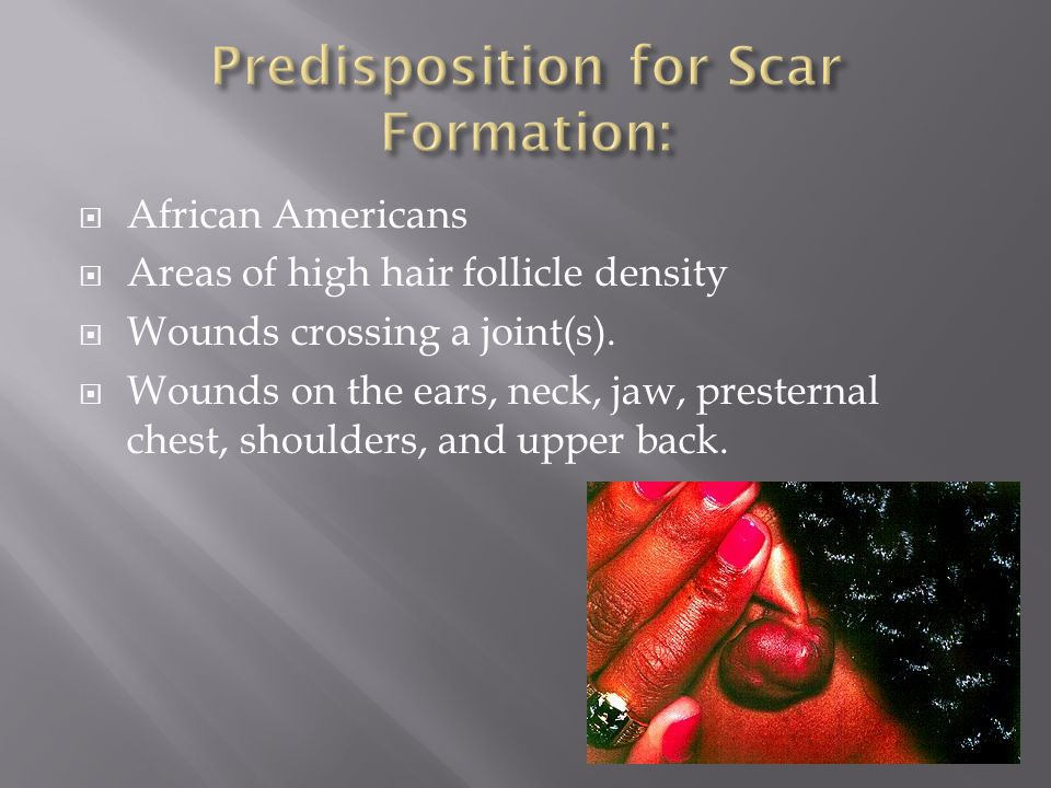  African Americans  Areas of high hair follicle density  Wounds crossing a joint(s).