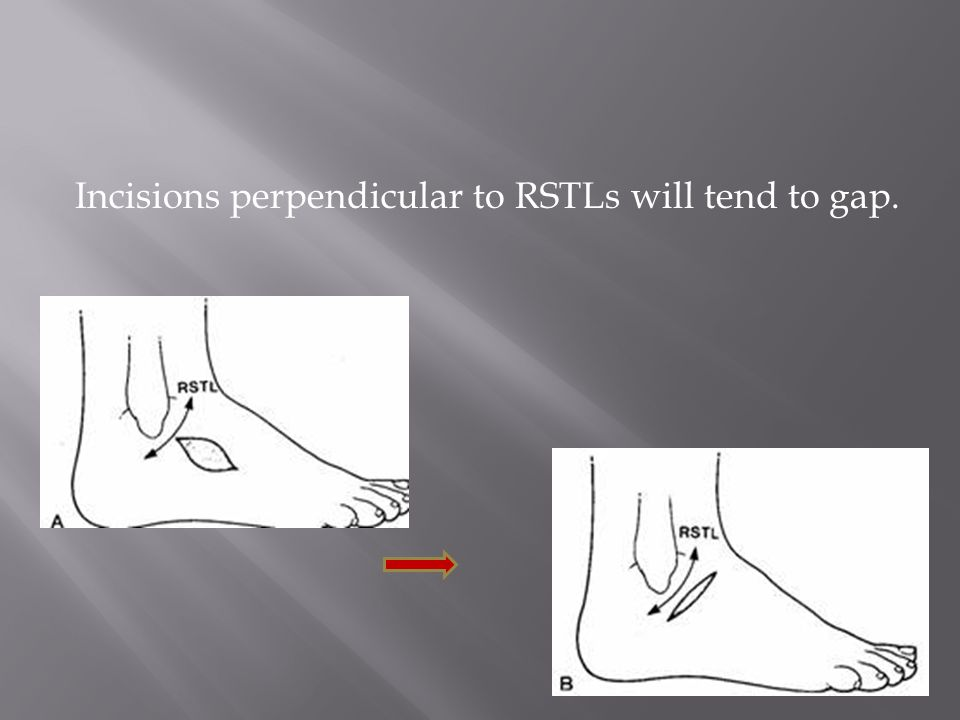 Incisions perpendicular to RSTLs will tend to gap.