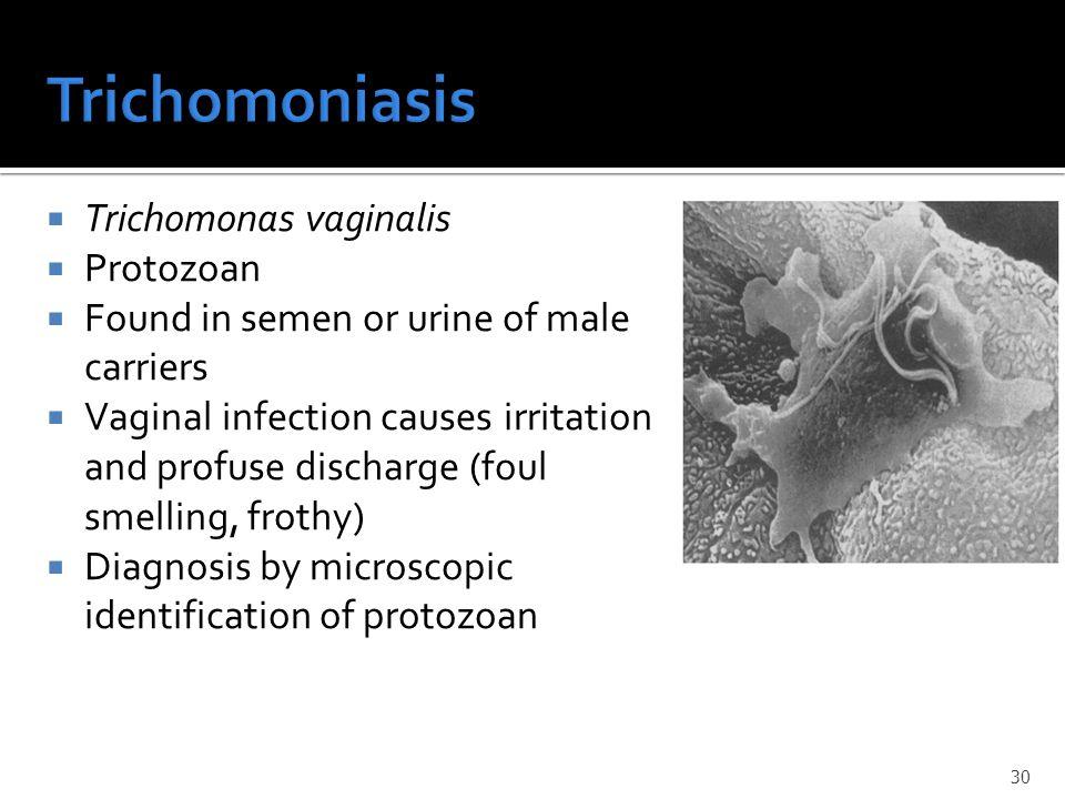  Toxoplasma  Other  Treponema pallidum  Listeria monocytogenes  Rubella  Cytomegalovirus  Herpes simplex 31