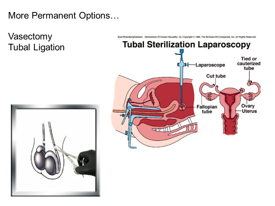 More Permanent Options… Vasectomy Tubal Ligation