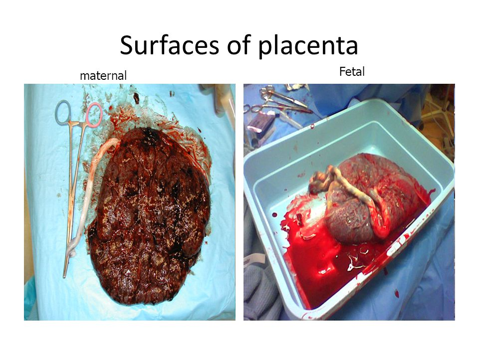 Surfaces of placenta maternal Fetal